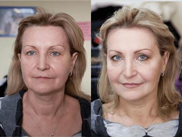 refacerea erecției după 52 de ani)